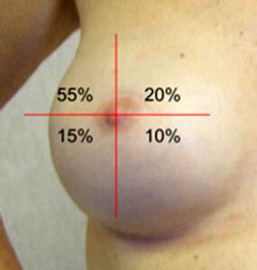 Brustkrebs Lage