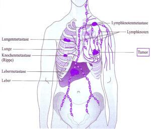 Metastasen bei Brustkrebs, Brustkrebs Metastasen, Knochenmetastasen